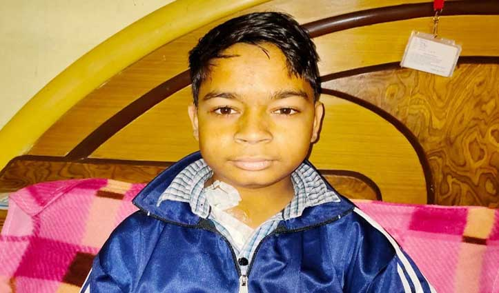 17 साल के Rahul की दोनों किडनियां फेल, परिवार ने मदद को लगाई गुहार