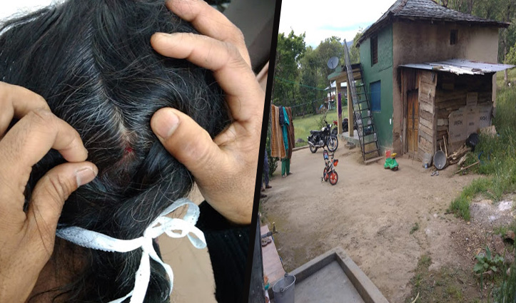 Jogindernagar: बंदरों को भगाने के लिए गोली चलाई,  छर्रे लग गए पड़ोसन को