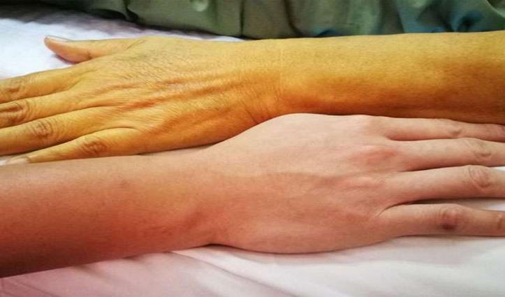 First Hand: कोरोना के शोर के बीच दबे पैर Himachal के इस कस्बे में पीलिया ने दी दस्तक