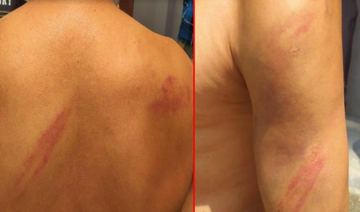 Sundernagar में चौकीदार पर डंडों से हमला, टांग-बाजू और पीठ पर आए गहरे घाव