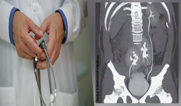शख्स को हुई पीठ दर्द की शिकायत, CT scan में दिखाई दीं 3 किडनी