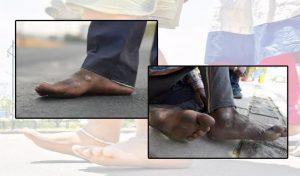 पैर के छाले रोक रहे कदमों को, खाने से ज्यादा इन्हें 'चप्पल' की है जरूरत