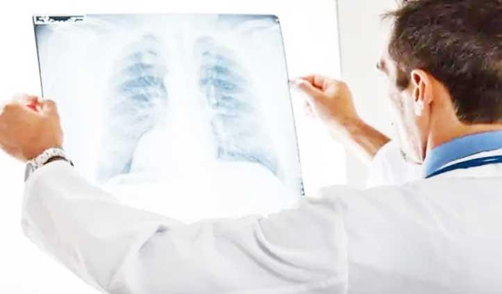 छाती का X-ray देखकर हो जाएगी कोरोना संक्रमित की पहचान, इस अस्पताल में होगा क्लीनिकल ट्रायल