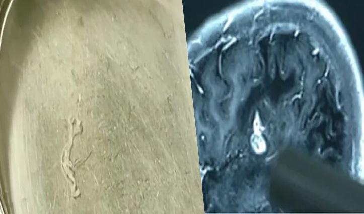 बचपन में खाया था जिंदा मेंढक: अब निकलवाया 'दिमाग के अंदर 17 साल से रह रहा' 5-इंच लंबा कीड़ा