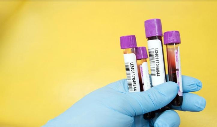 कमाल का Test, लक्षण दिखने से पहले ही चल जाएगा Cancer का पता