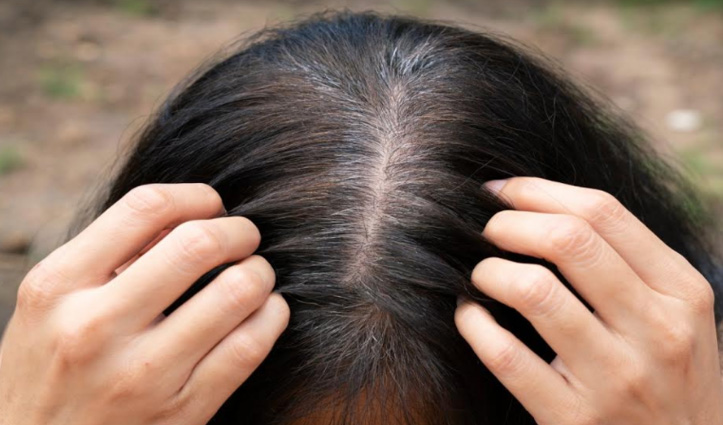 बालों को जड़ से काला बनाएगी घर में रखी ये छोटी सी चीज, जरूर आजमाएं