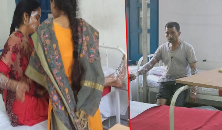 #Mandi : रसोई गैस सिलेंडर में आग लगने से पति-पत्नी झुलसे, अस्पताल में चल रहा इलाज