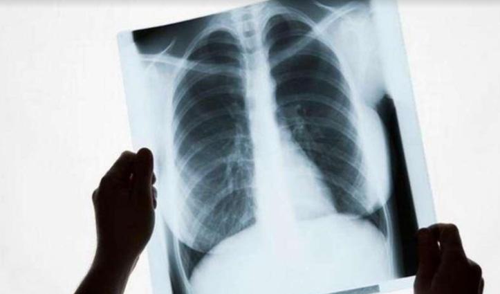 सभी हिमाचलियों के लिए फ्री किए गए X-Ray-अल्ट्रासाउंड सहित 56 तरह के टेस्ट