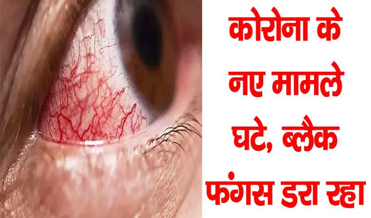 कोरोना के नए मामले घटे, ब्लैक फंगस डरा रहा, WHO- बोला भारत की स्थिति चिंताजनक