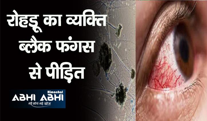 IGMC में ब्लैक फंगस से पीड़ित महिला की निकाली आंख, एक नया मामला किया रिपोर्ट