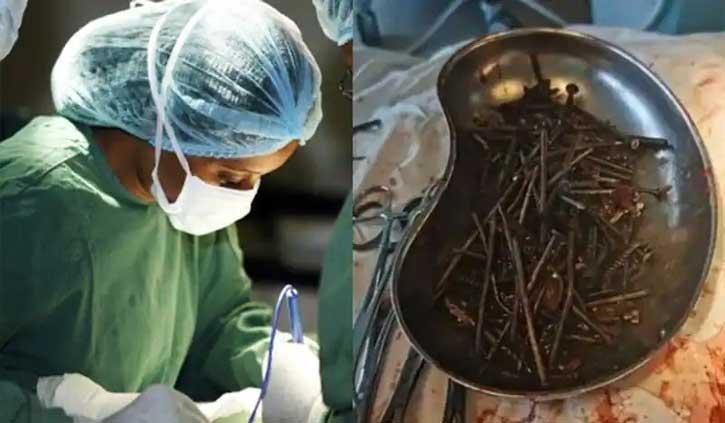 इंसान के पेट से निकला कील और पेंच का जखीरा, डॉक्टर्स रह गए हैरान